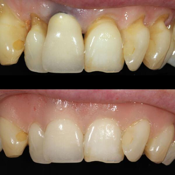 Epithese | Barnevelds Tandtechnisch Laboratorium