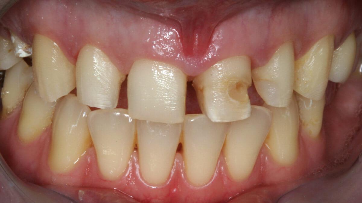 Presentatie | Casus 2 | Barnevelds Tandtechnisch Laboratorium