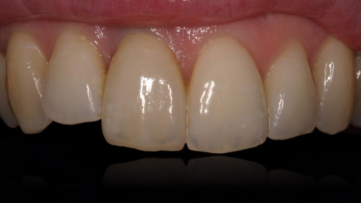 Presentatie | Casus 3 | Barnevelds Tandtechnisch Laboratorium