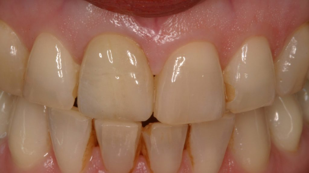 Presentatie | Casus 6 | Barnevelds Tandtechnisch Laboratorium