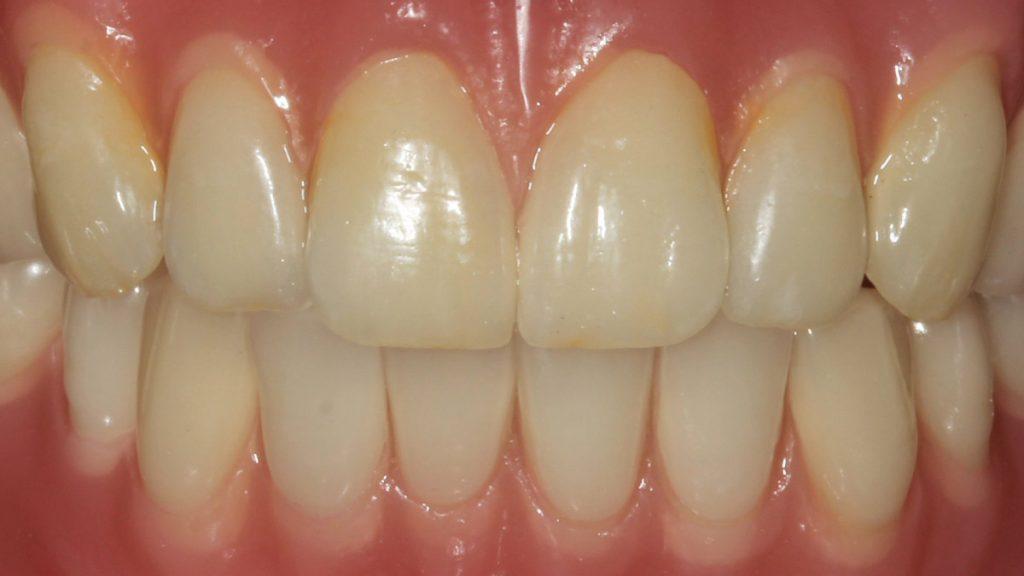 Presentatie | Casus 7 | Barnevelds Tandtechnisch Laboratorium