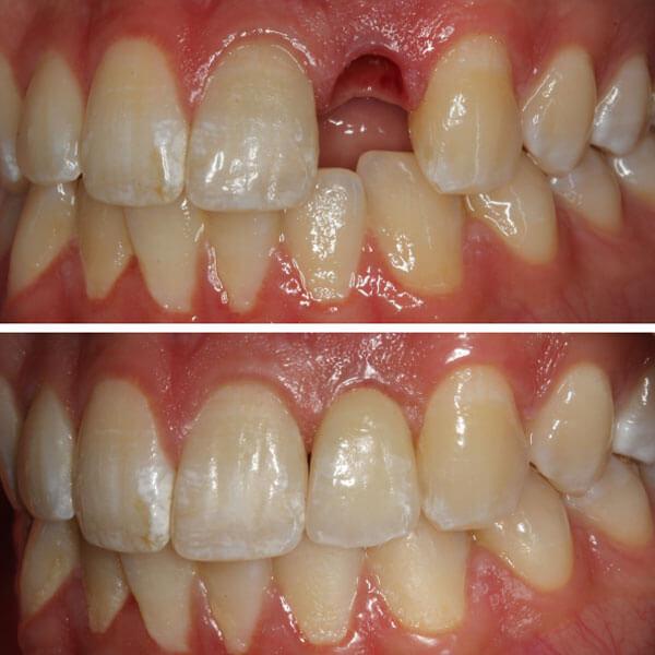 Nieuws | Keramische implantaat kroon op individueel keramisch abutment | Barnevelds Tandtechnisch Laboratorium
