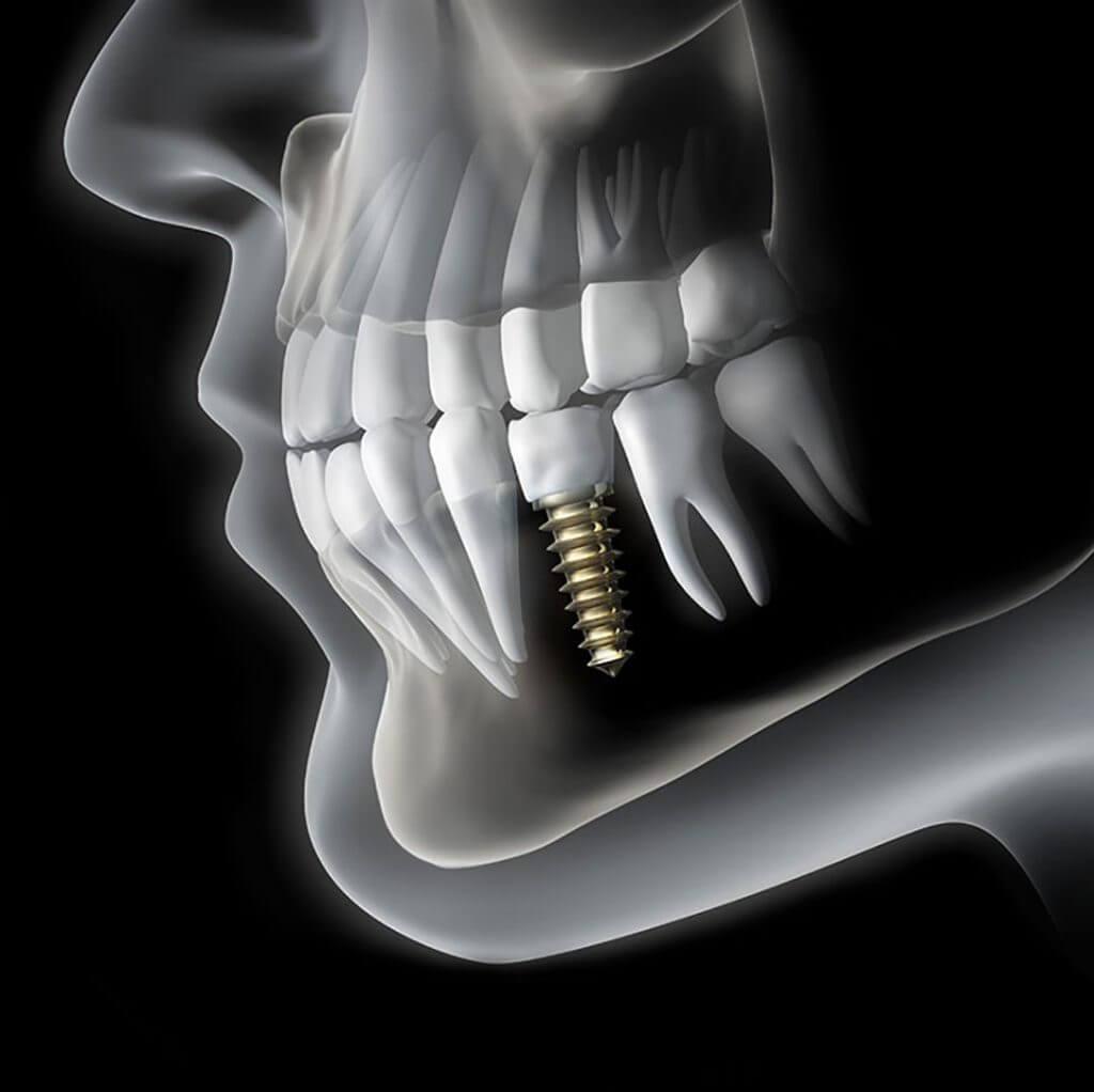 Specialisme | Implantologie | Barnevelds Tandtechnisch Laboratorium