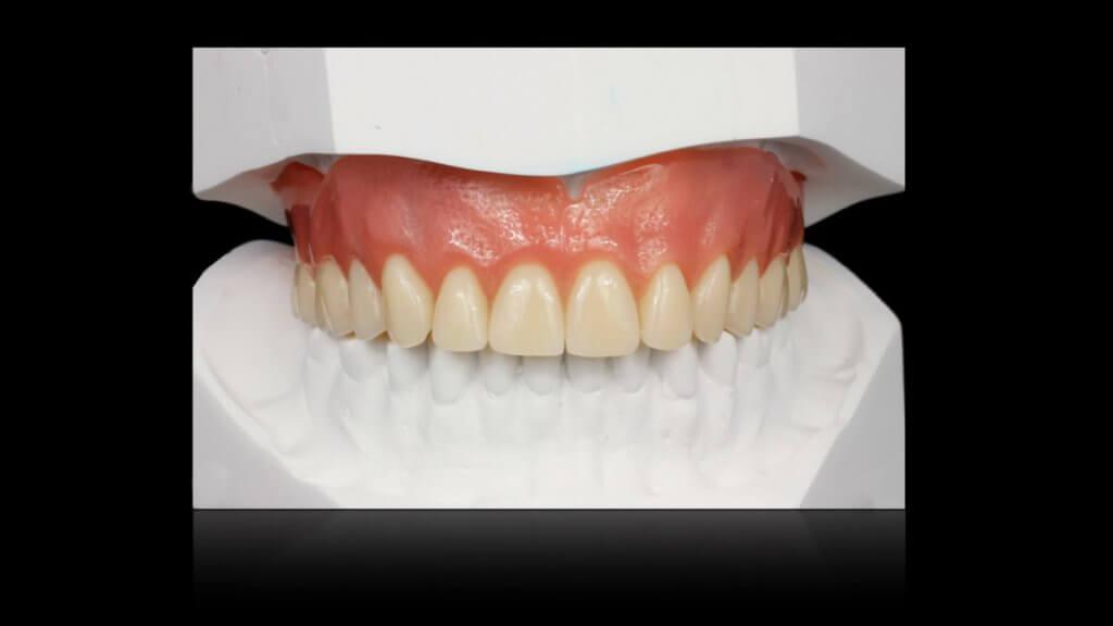 Presentatie | Casus 14 | Barnevelds Tandtechnisch Laboratorium