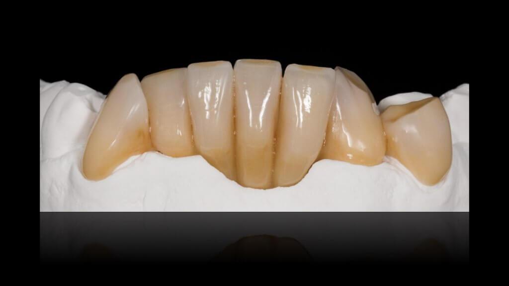 Presentatie | Casus 15 | Barnevelds Tandtechnisch Laboratorium