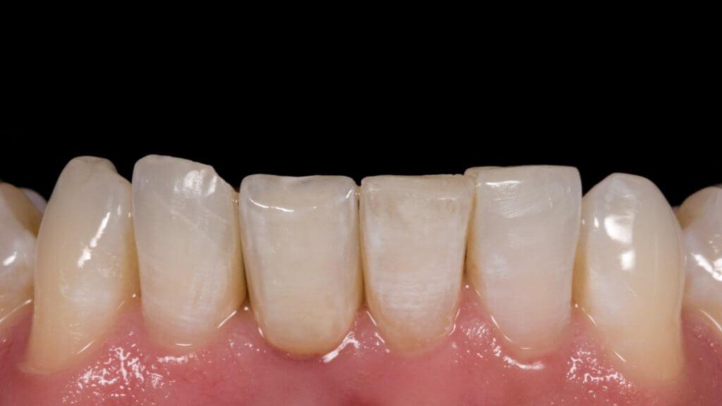 Presentatie | Casus 19 | Barnevelds Tandtechnisch Laboratorium