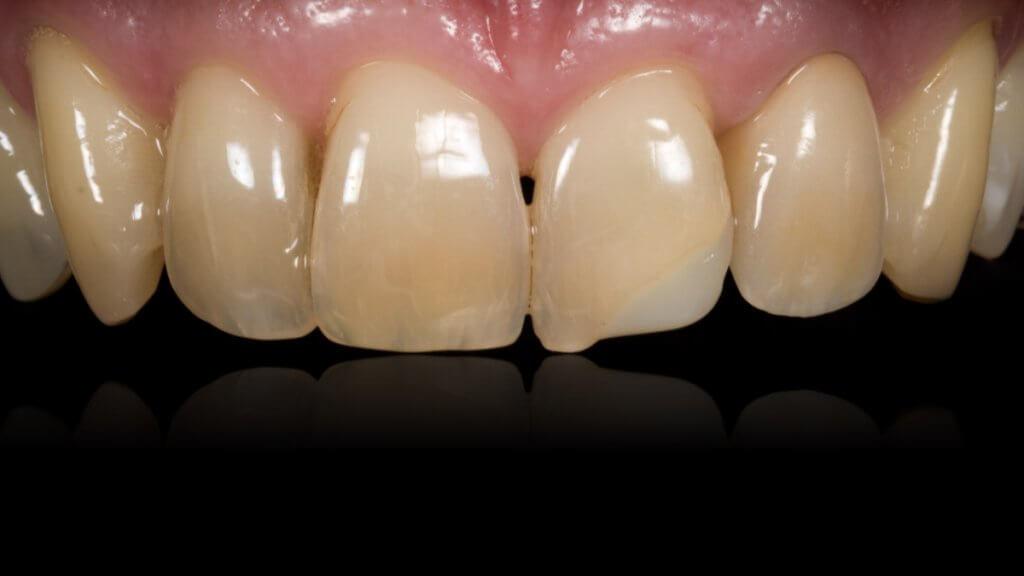 Presentatie | Casus 20 | Barnevelds Tandtechnisch Laboratorium