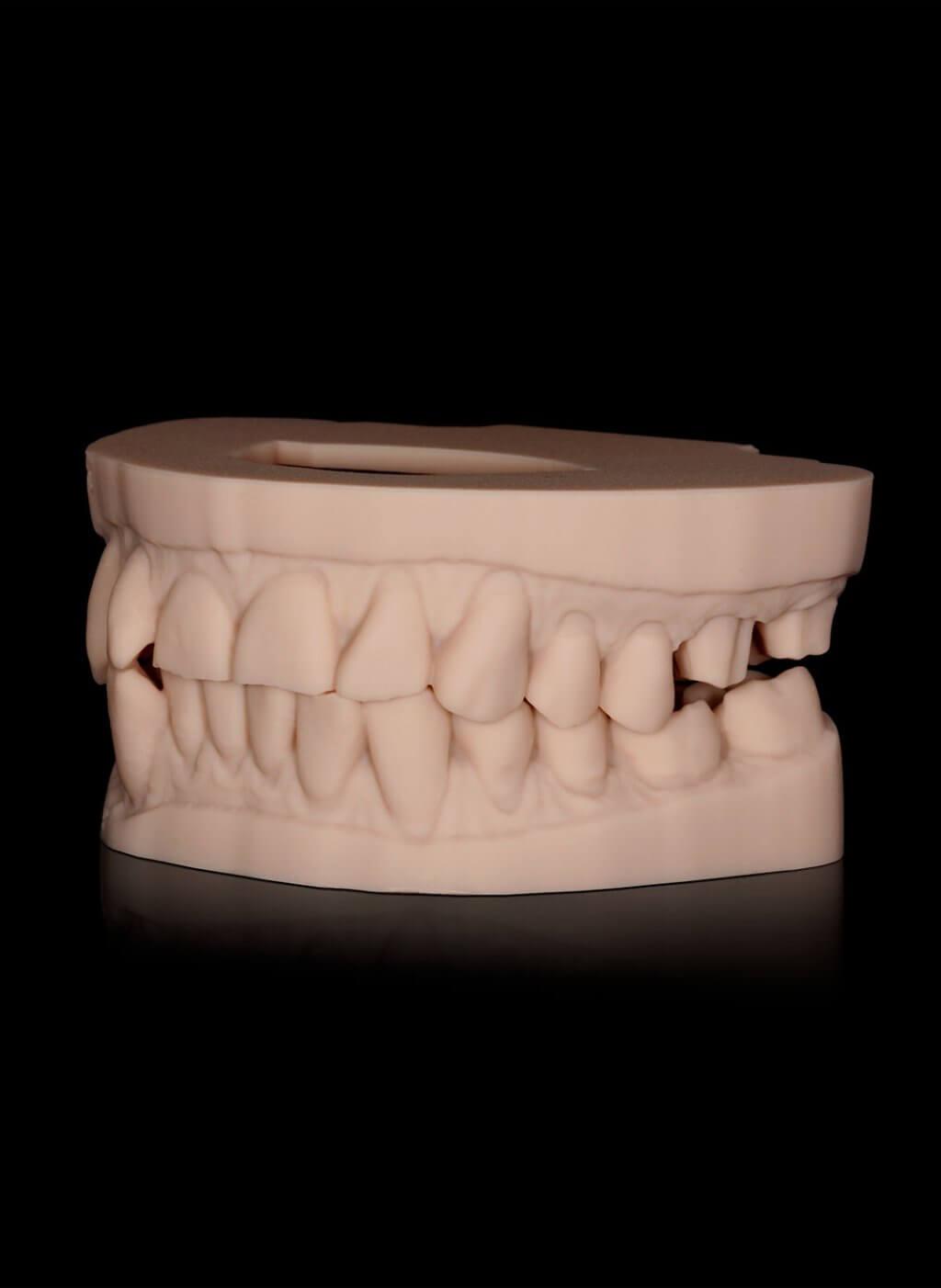 Specialismen | 3D printer | Barnevelds Tandtechnisch Laboratorium