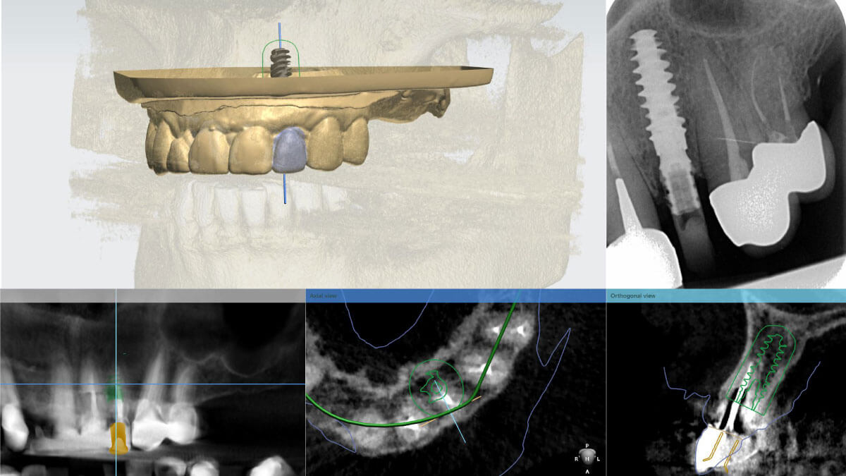 Implantaatplanning | Tandtechnicus CAD/CAM | Barnevelds Tandtechnisch Laboratorium