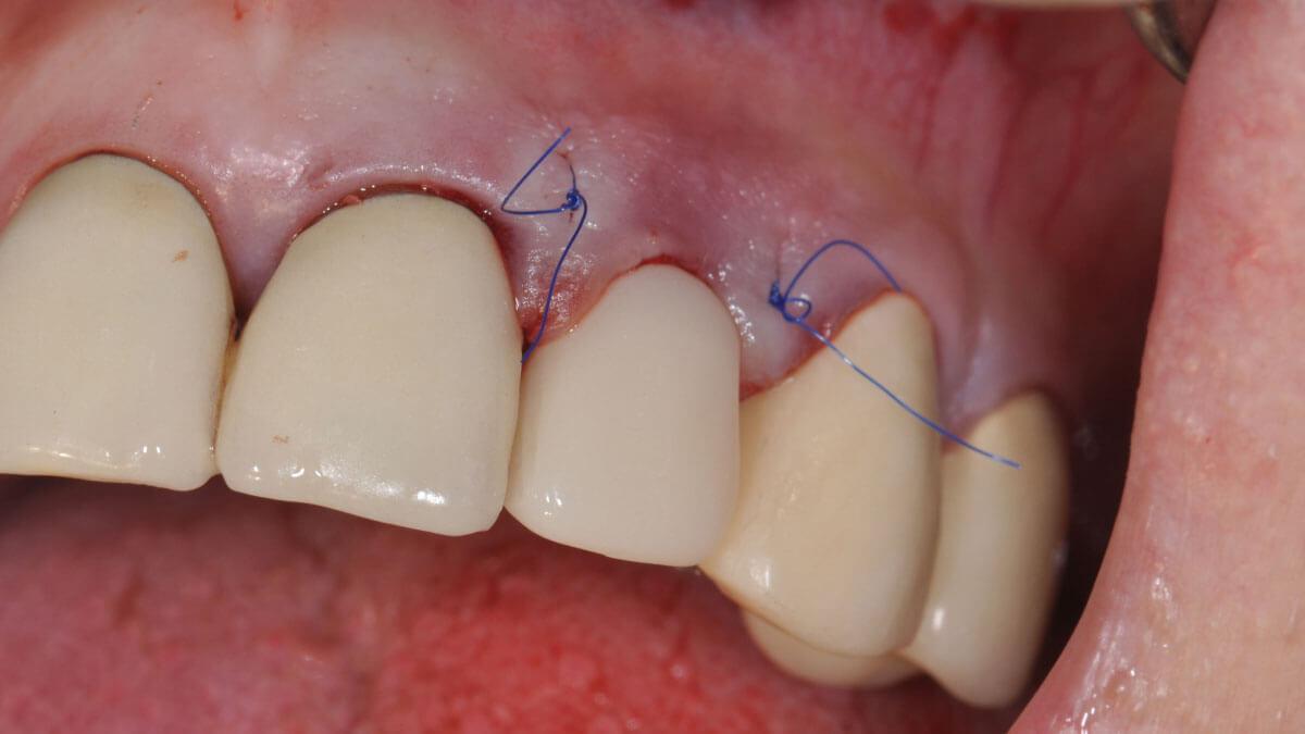 Noodkroon | Tandtechnicus CAD/CAM | Barnevelds Tandtechnisch Laboratorium