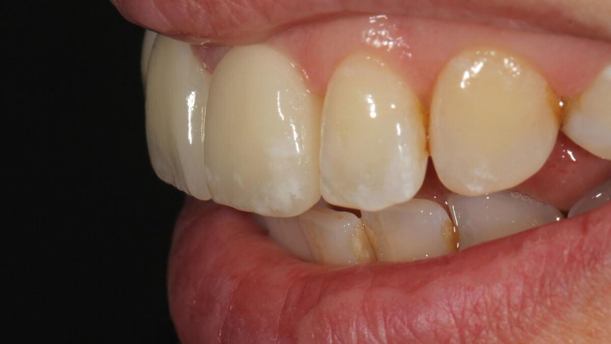 Disilicaat Kronen   Barnevelds Tandtechnisch Laboratorium