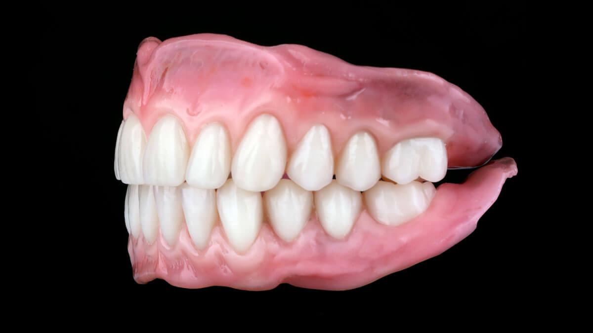 Premium+ Prothese | Barnevelds Tandtechnisch Laboratorium