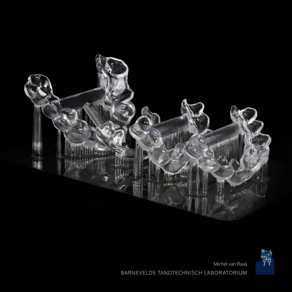 Surgical guides | Barnevelds Tandtechnisch Laboratorium