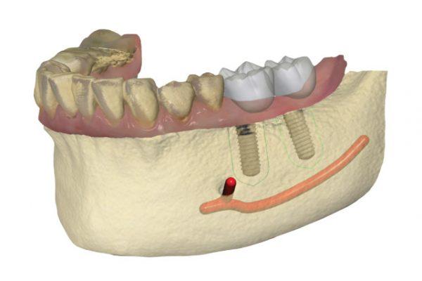 Implant Studio | Barnevelds Tandtechnisch Laboratorium